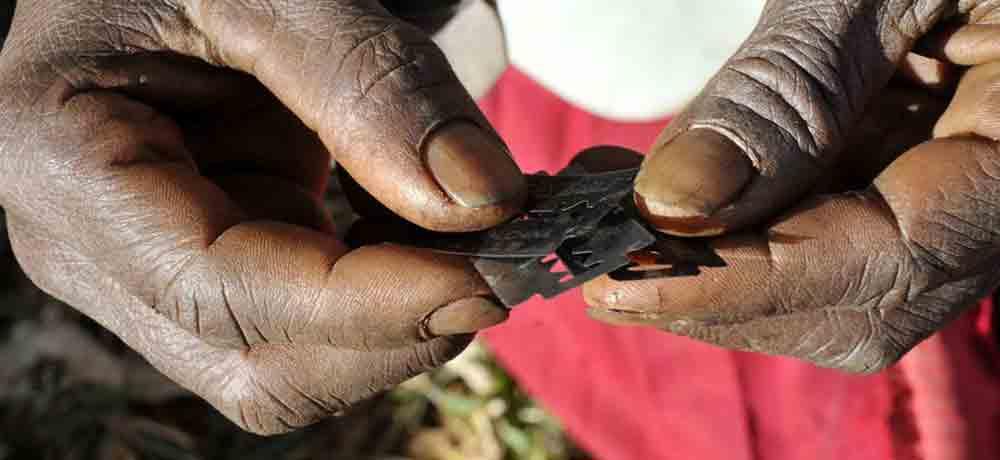 ختنه زنان