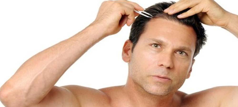 نشانه های وسواس مو کنی | وسواس کندن مو