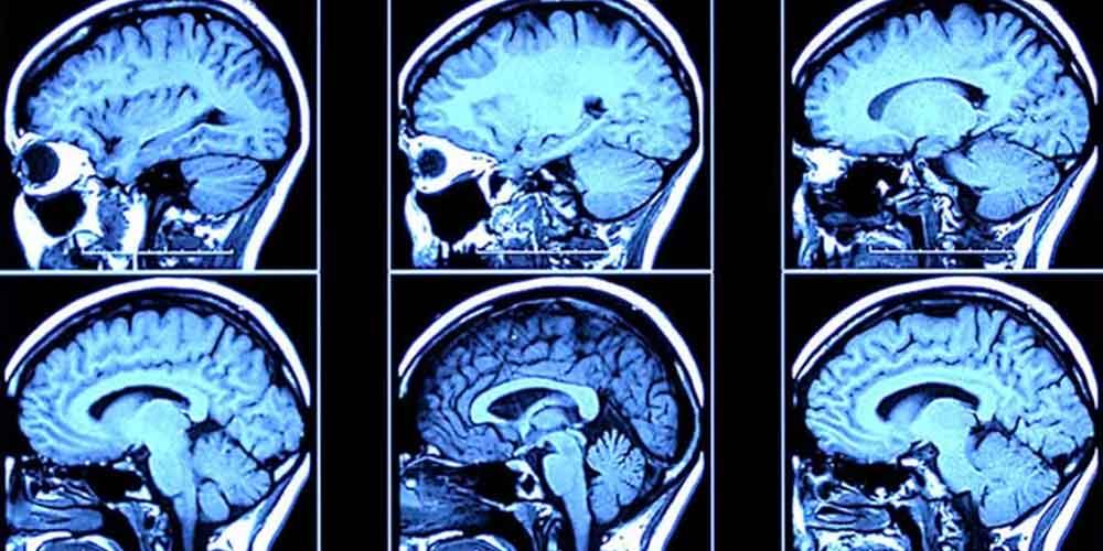 مواد مخدر با ذهن و مغز چه می کند؟