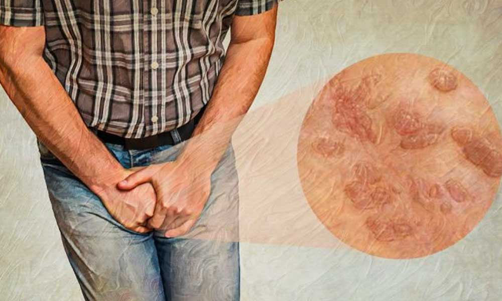 بیماری های مقاربتی | علائم و انواع بیماری های قابل انتقال از طریق رابطه جنسی