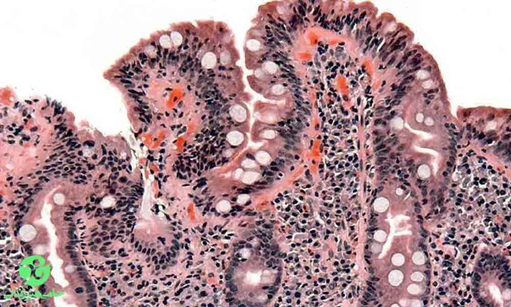 بیماری سلیاک | علائم، انواع و درمان سلیاک