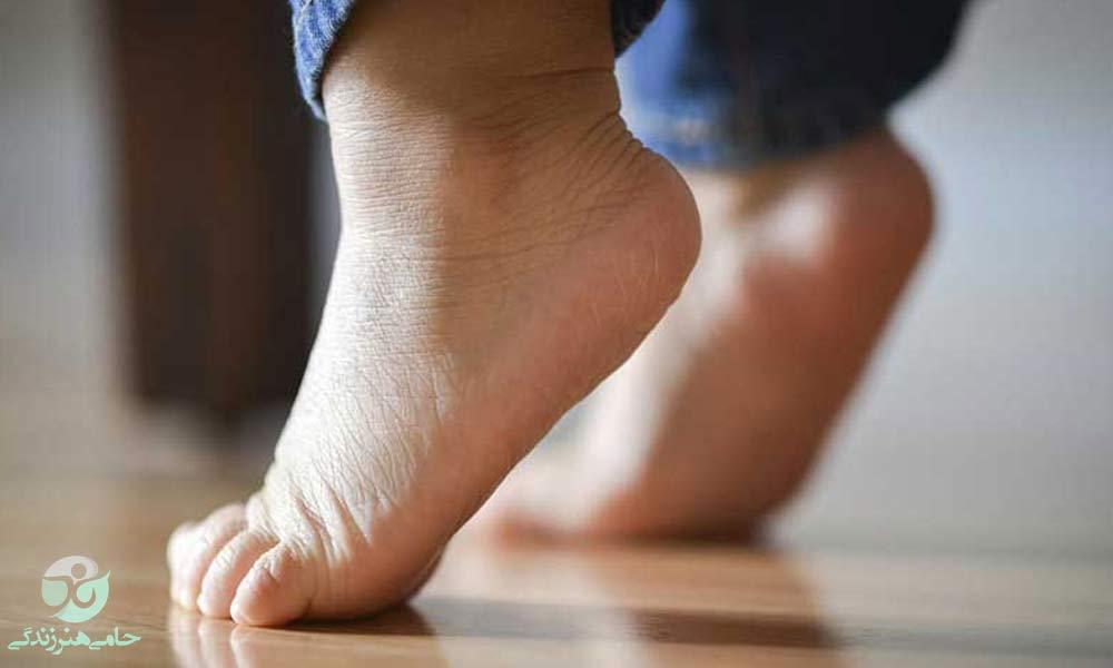 راه رفتن روی پنجه در کودکان | چه زمانی این مسئله نگران کننده است؟