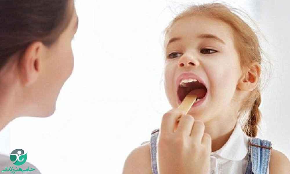 علت بوی بد دهان کودک و راهکارهای موثر برای از بین بردن آن