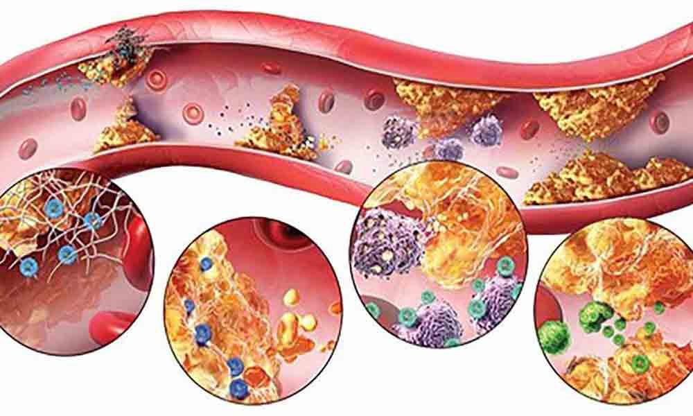سم زدایی برای ترک اعتیاد | تعویض خون چقدر در درمان تاثیر دارد؟