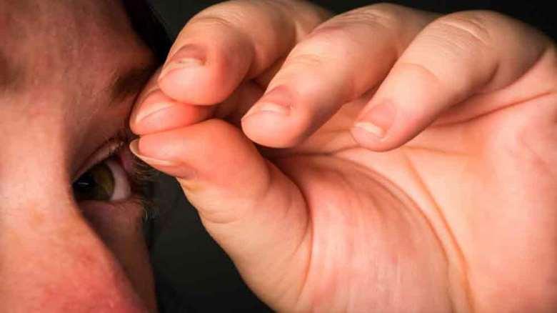 وسواس مو کنی | تشخیص و نحوه درمان وسواس کندن مو