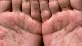 بیماری سفلیس | علائم، تشخیص و درمان بیماری سفلیس