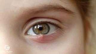 گل مژه | علل، علائم و درمان گل مژه چشم