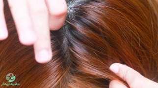 شپش سر | علائم و راه های تشخیصی و درمانی آن